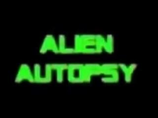 Autopsia alienígena - Alien autopsy