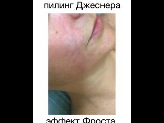 Video by Lyudmila Podgorodetskaya